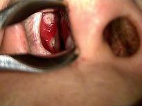 切れる 鼻 の 穴